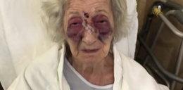 """92-letnia staruszka brutalnie pobita podczas podróży do córki. """"Ciekła mi krew z nosa, nie wiedziałam co robić"""""""