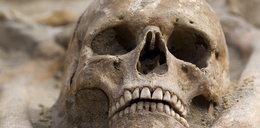 Makabra w Sosnowcu. Ludzka czaszka w parku