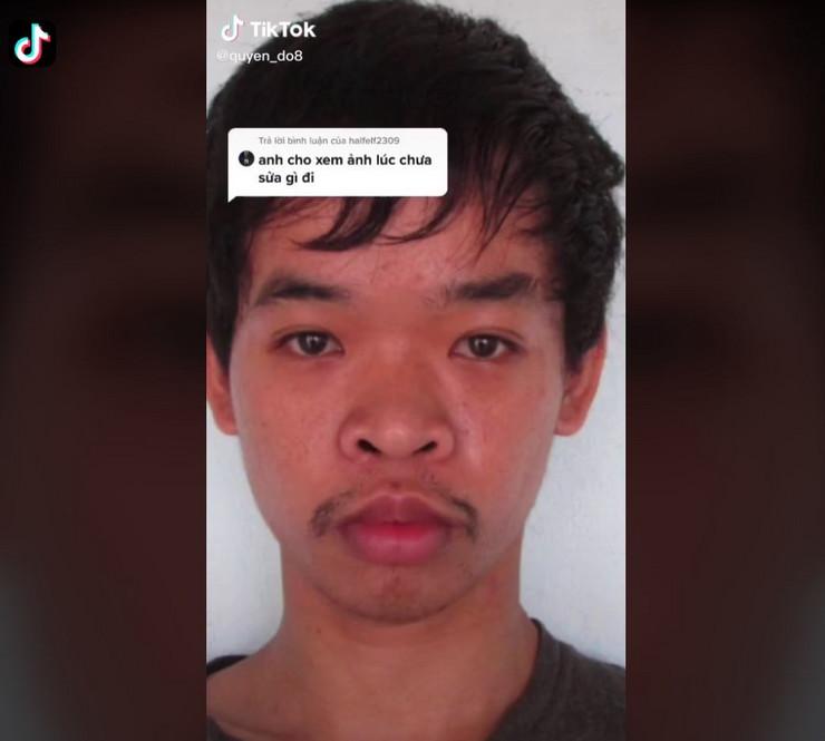 Mladić, plastične operacije zbog posla