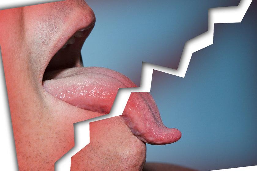Implant językowy