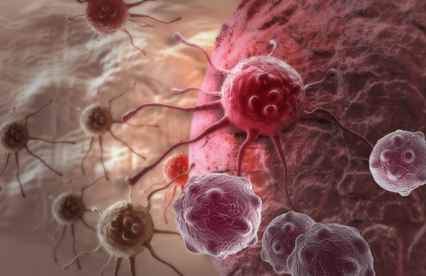 W Polsce na raka piersi potencjalnie zachoruje co 14 kobieta, ta liczba niestety wciąż rośnie.