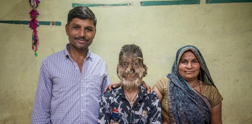 Lalit Patidar ma twarz pokrytą włosami. Cierpi na syndrom wilkołaka!