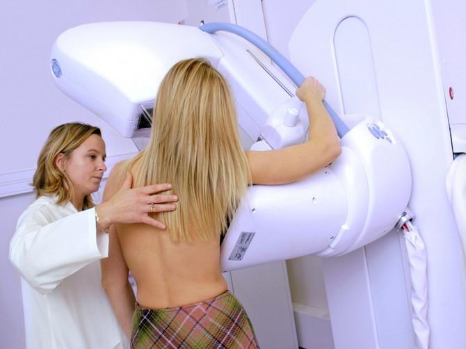 Svi detalji o raku dojke