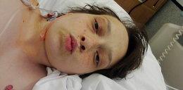 Zmarła, bo lekarze przez 30 godzin nie podali jej leku