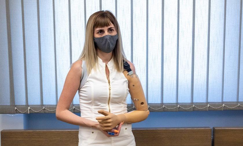 Alona Romanenko straciła rękę przy pracy.