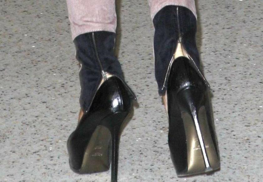 Victoria Beckham ma straszne halusky i będzie musiała operować sobie stopy