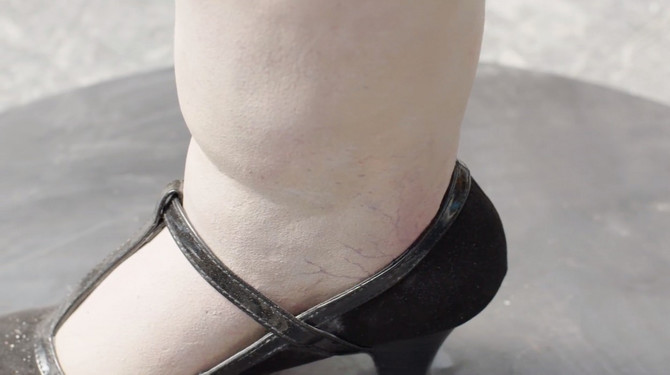 Otečene noge