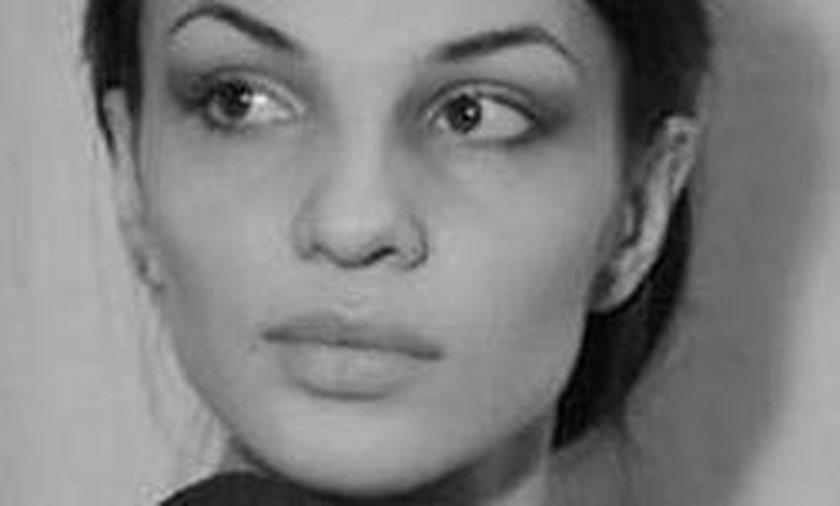 Moskwa. 29-letnia Marina Kruchowa zmarła po operacji plastycznej