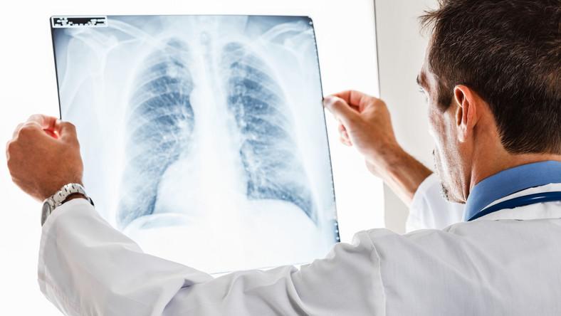 RTG płuca