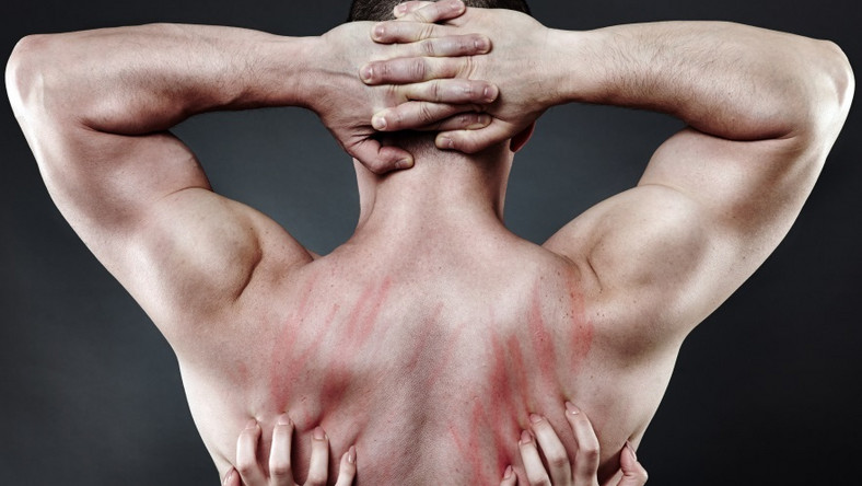 1. Sthenolagnia - satysfakcję seksualną przynosi obcowanie z wyrzeźbionymi mięśniami