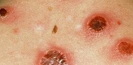 Idzie plaga wstydliwych choróbsk w Polsce