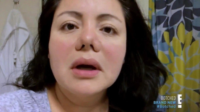 Umesto stomaka, hirurg joj je sredio nos