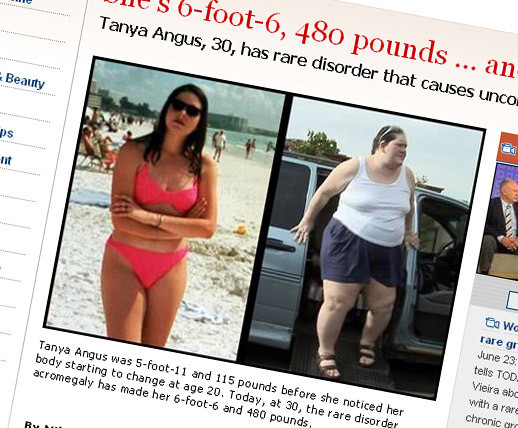 Jej koszmar: 2 metry wzrostu i 215 kilo wagi