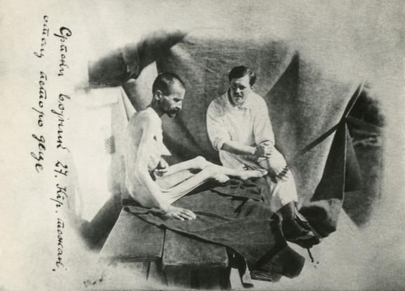 Izgled vojnika čija se težina svela na 27 kg posle gladi i zime na putu preko Albanije, 1916.