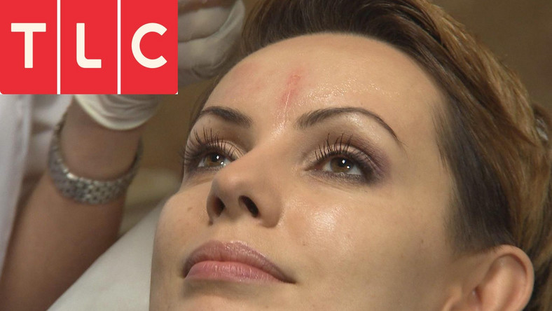 W telewizji TLC uwielbiane przez fanów gwiazdy szczerze i otwarcie opowiedzą o kompleksach związanych ze swoim wyglądem.