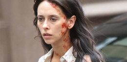 Straszna twarz gwiazdy Hollywood. FOTO