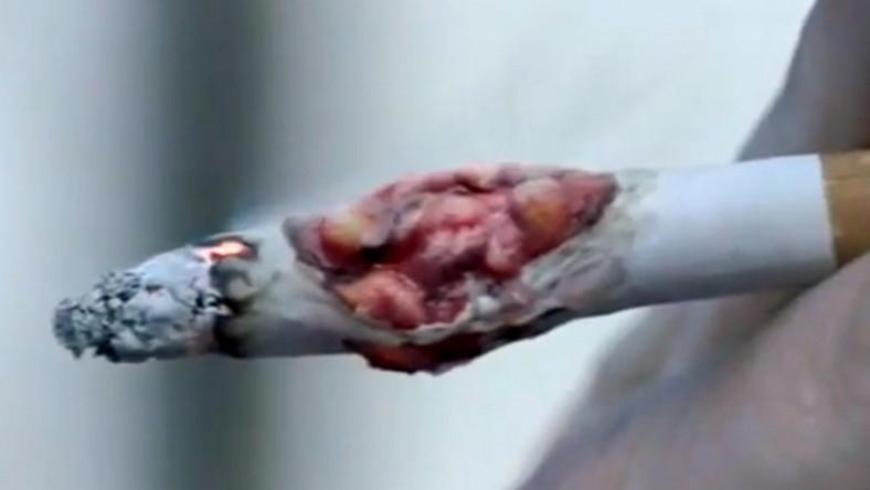 Rak na papierosie wygląda bardzo realistycznie