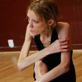 Znane anorektyczki i bulimiczki