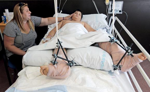 Žena kojoj su transplatnirane obe noge