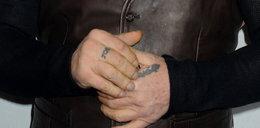 Obcięte palce, cztery nerki i guzy na czołach
