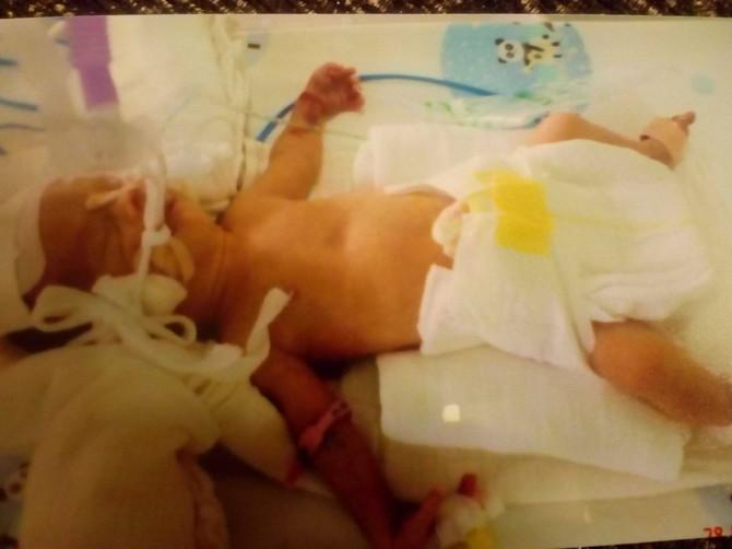 """Kada sam rodila Zlatu, lekari su joj dali ocenu 7 i """"minimalne šanse"""", a meni je ličila na porculanskog zeku: A pogledajte je danas!"""