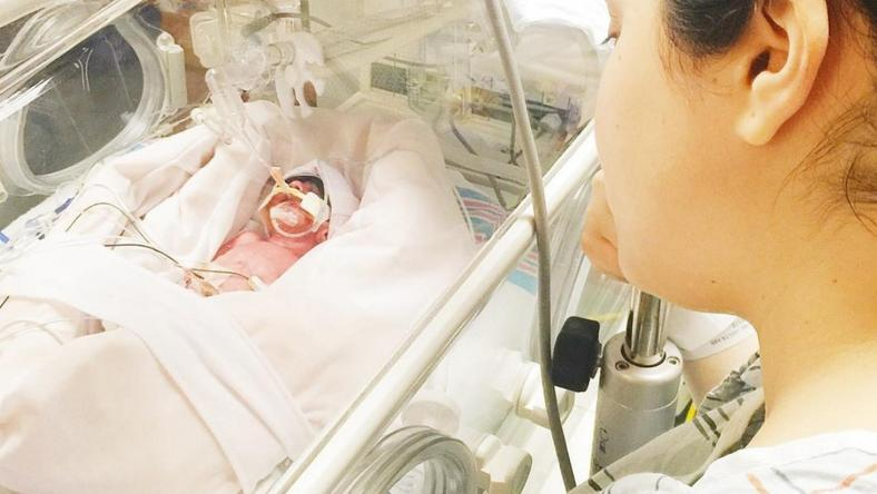 Przedwczesny poród uratował jej życie