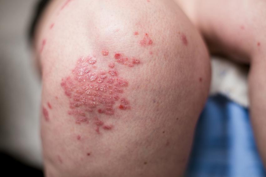 haj pikkelysömör tünetei s kezelse