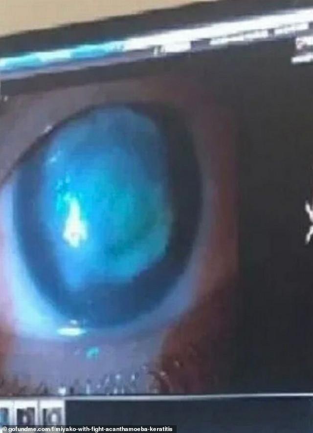 Mijakino oko se jako zacrvenelo, stalno je suzilo i imala je migrenu