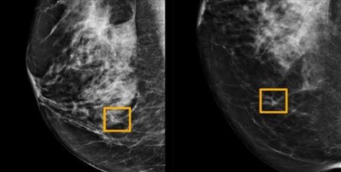 Novi program bolje otkriva rak dojke od samih radiologa