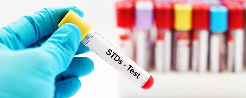Everyone needs to test for STIs