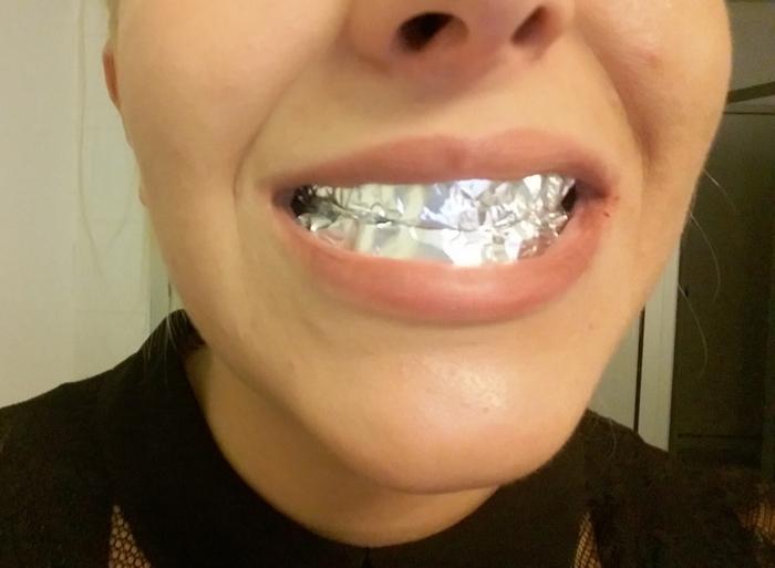 Popravka zuba cena