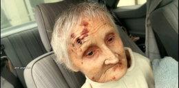 Horror w domu opieki. Pani Irena zmarła po kilku dniach od zabrania jej z ośrodka
