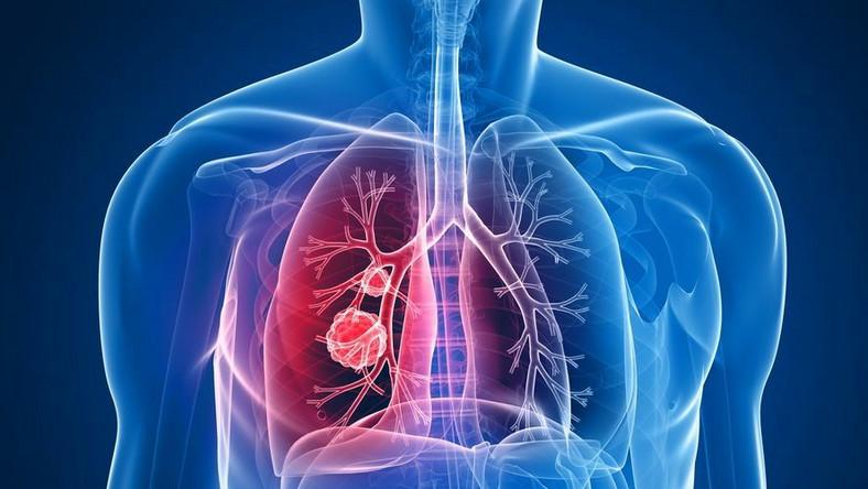 Spirometria pozwala wykryć obturację dróg oddechowych i dlatego jest pomocna w diagnostyce przewlekłych chorób oskrzeli i płuc
