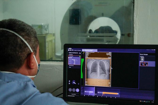 Pluća pacijenta obolelog od KOVID-19