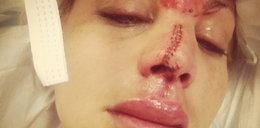 Zmasakrowana twarz modelki. Miała dziwny wypadek...