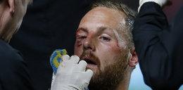 Rozcięta twarz piłkarza! Polała się krew!