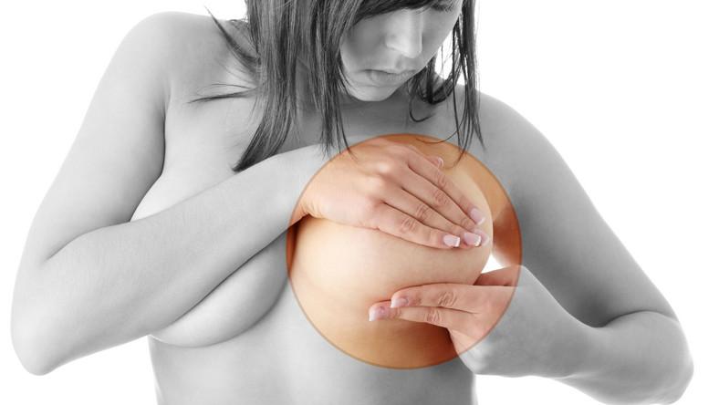 Pod względem częstości zachorowań rak piersi zajmuje w Polsce pierwsze miejsce wśród nowotworów złośliwych kobiet