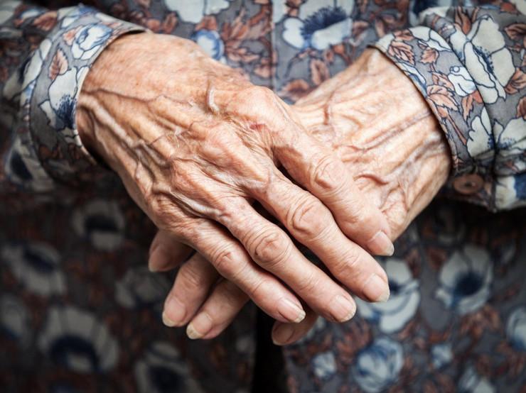 žena stara ruke profimedia-0316850795