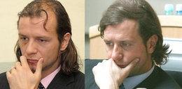 Majdan przeszczepił włosy?!