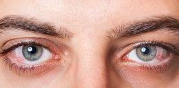 Popełniasz te błędy? Możesz stracić wzrok!