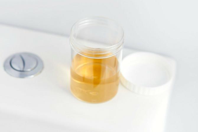 Boja urina dosta govori o vašem zdravlju