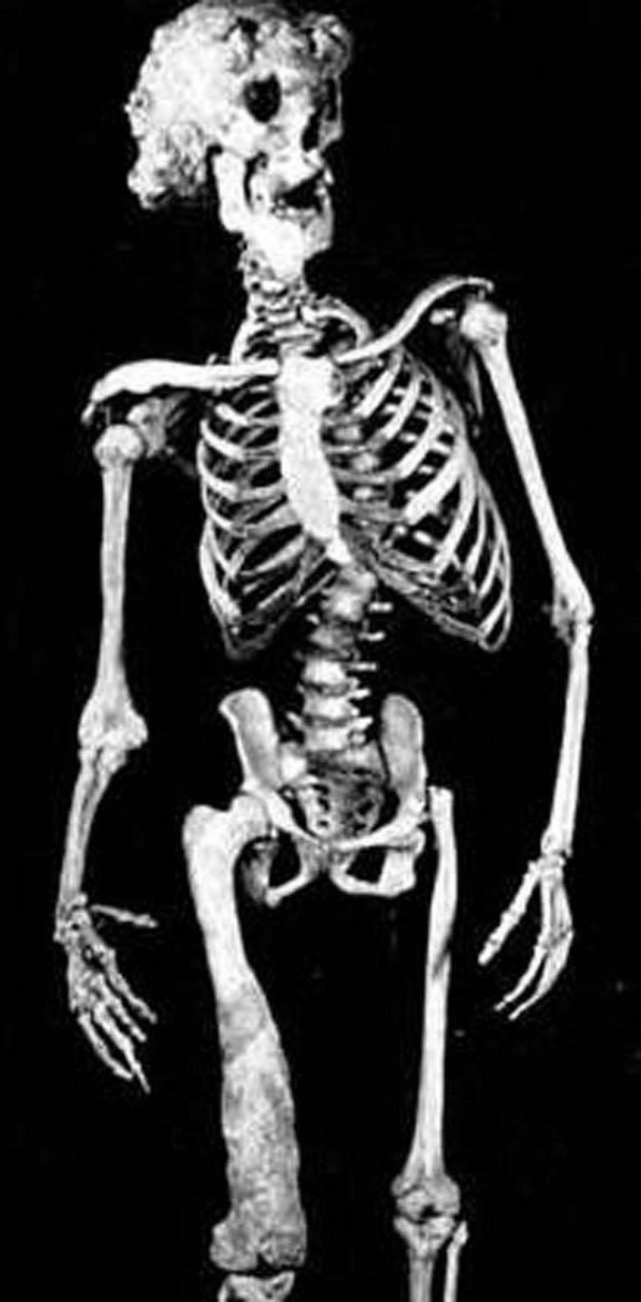 Merikov kostur je sačuvan u londonskoj bolnici nakon njegove smrti