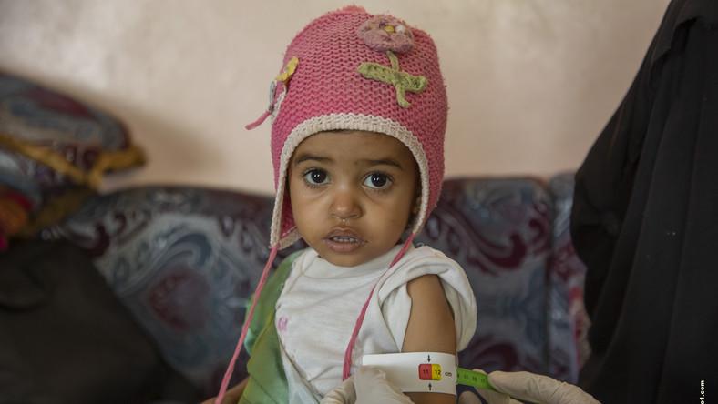 """Jemen: Tragedia i głód dzieci w czasie wojny. """"Nie mogą nawet płakać"""""""