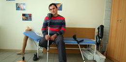 Lekarze zrobili ze mnie kalekę. Obcięli mi nogę, bo...
