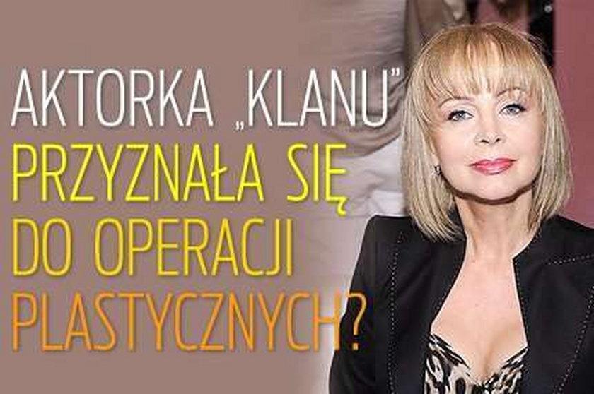 """Aktorka """"Klanu"""" przyznała się do operacji plastycznych?"""