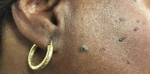 Dr Pimple Popper Just Popped A Sticky Dilated Pore Of Winer