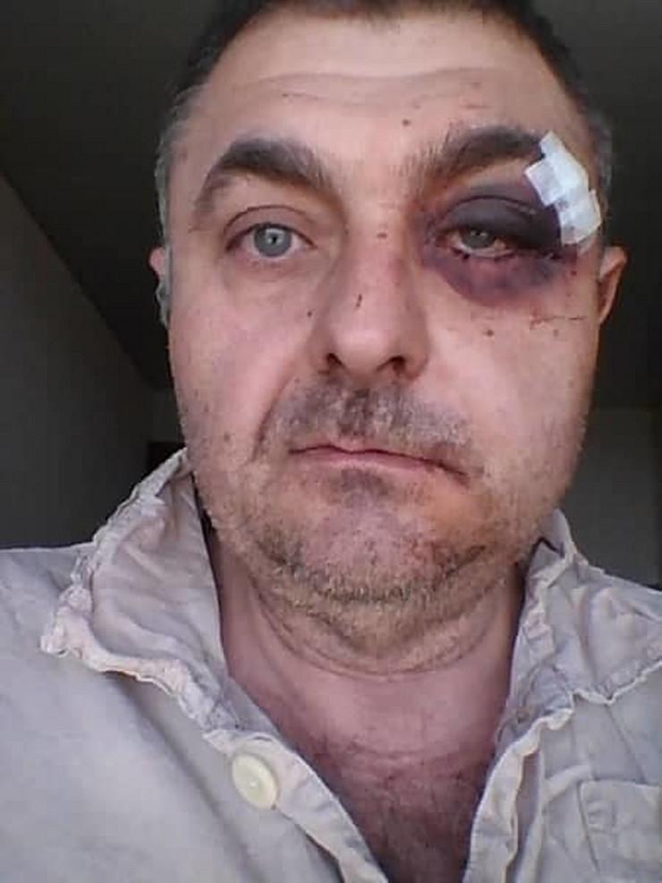 Goran Veselinov sa povredama
