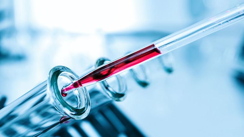 """""""Biobankowanie to nic innego jak pobieranie krwi, frakcjonowanie jej, izolowanie DNA, pobieranie materiału biologicznego z guzów, wycinków tkanki zdrowej"""""""