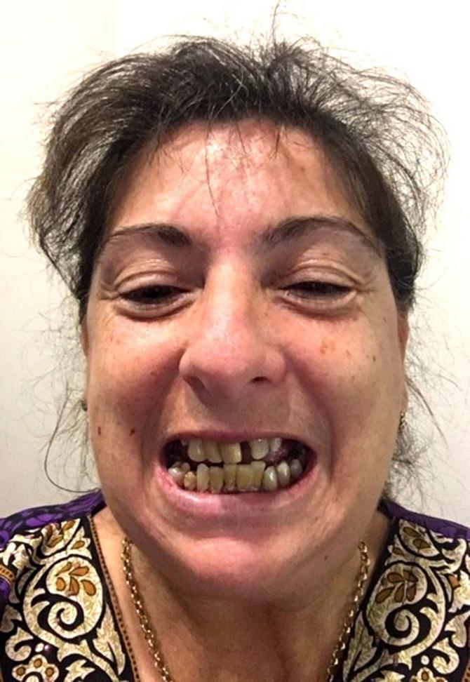 Godinama su joj zubi izgledali ovako