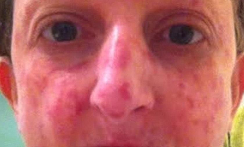 Facebook skrzywdził chorą kobietę